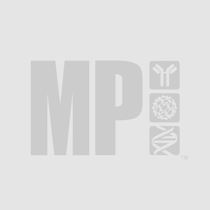 Anti-human IgM (5Fc Mu) goat affinity-purified F(Ab')2 fragment, 1 mg